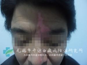 刘某/男性/局限型/面部白斑